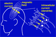 180px-Magnetoencephalography