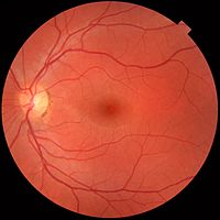 200px-Fundus_photograph_of_normal_left_eye