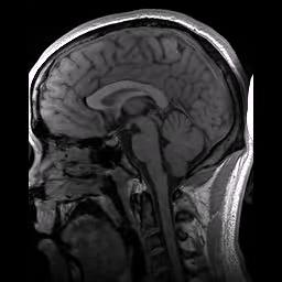 Structural_MRI_animation.ogv