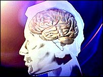 _41294811_brain203